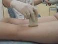 УЗДГ артерий верхних и нижних конечностей