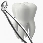 Удаление зубов. Челябинск